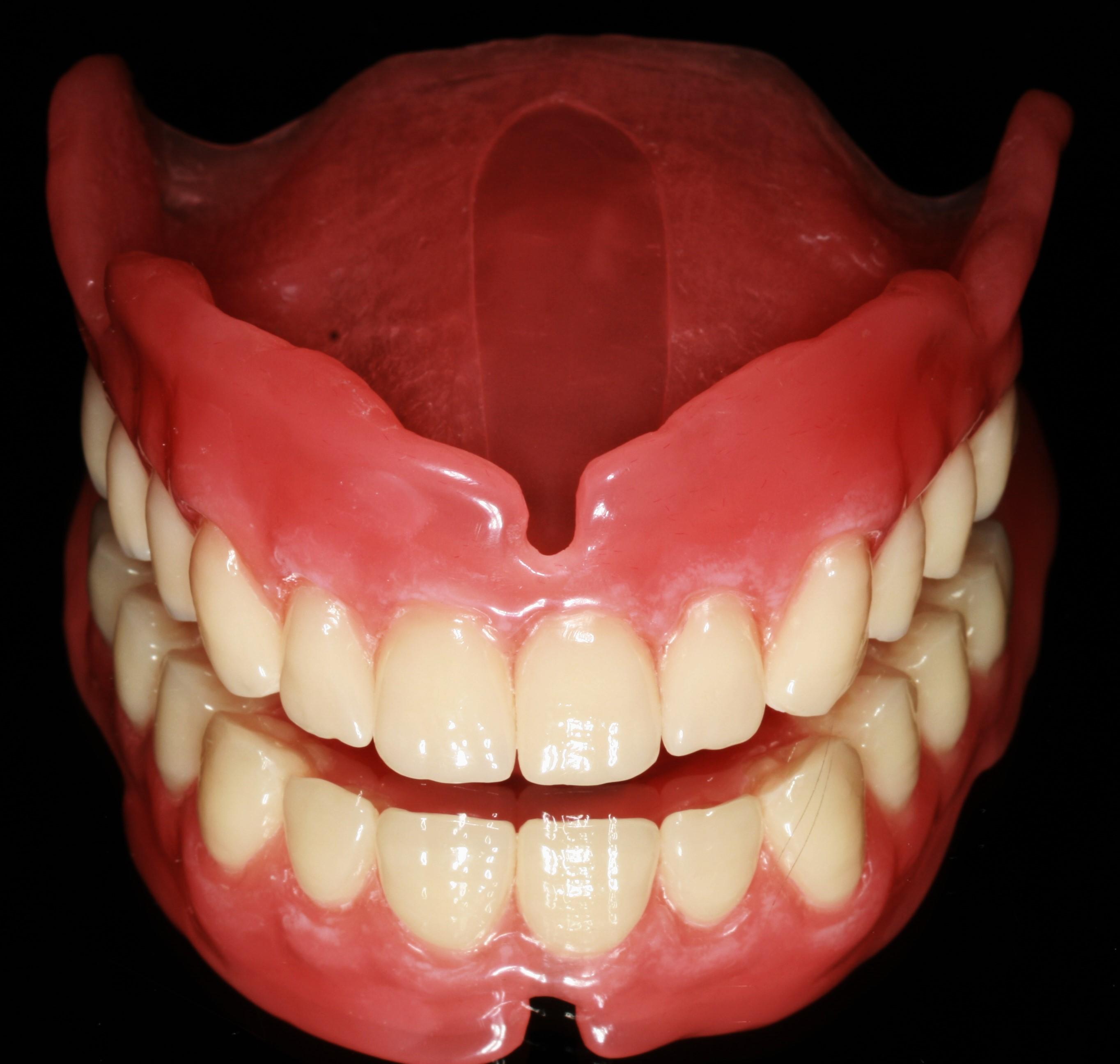 Κινητή προσθετική – Οδοντοστοιχίες